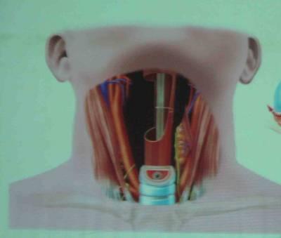 запах изо рта при раке пищевода